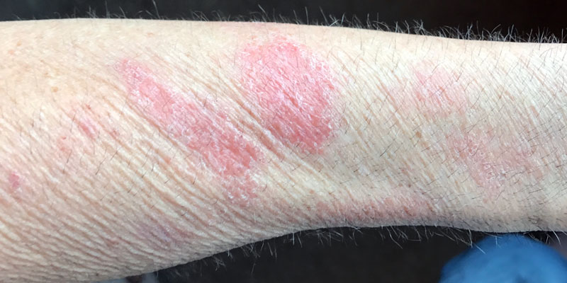 Nair hair remover for scabies - The Scabies Cure