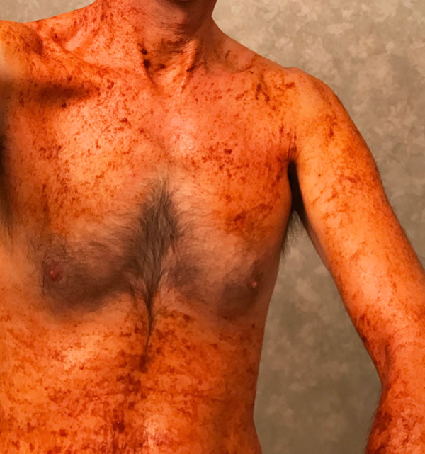 Cayenne pepper for scabies - The Scabies Cure